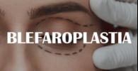 blefaropalstia