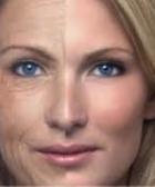Lipoestructura Facial o Lipofilling de la cara